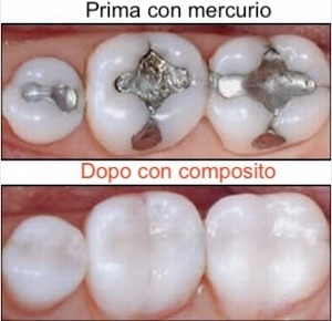 Le pericolose amalgame dentali in mercurio